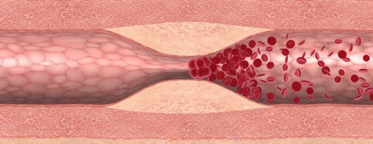 Das Bild zeigt ein Blutgerinnsel, das sich durch eine Engstelle in der Arterie gebildet hat. Der gestaute Blutstrom bildet einen Thrombus, der zum Gefäßverschluss führt.
