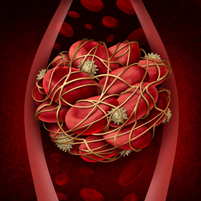 Blood clot and thrombosis medical illustration concept as a group of human blood cells clumped together by sticky platelets and fibrin creating a blockage in an artery or vein as a health disorder symbol for circulatory system danger.